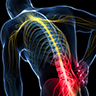 Musculoskeletal Diseases - Low Back Pain